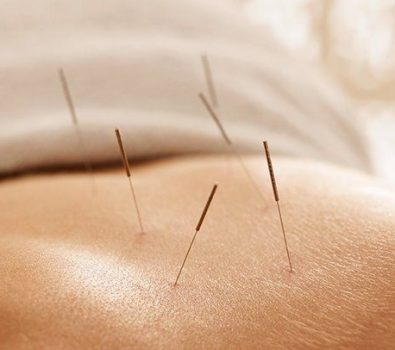 Can acupuncture really cure all of your major health problems?