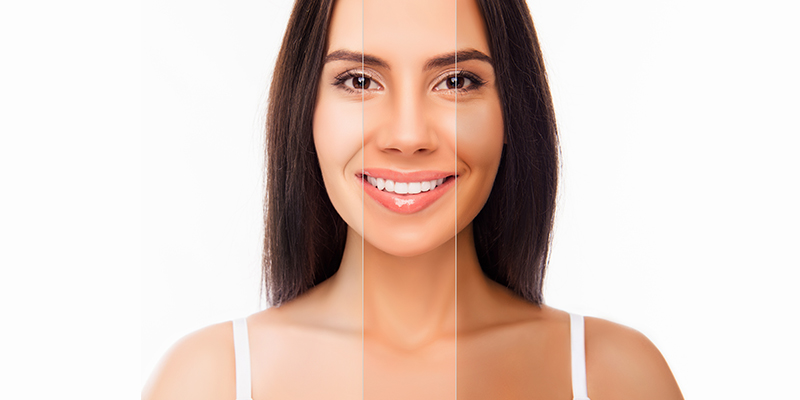 Do you want that perfect body complexion? Try the new tanning injections for sale today!