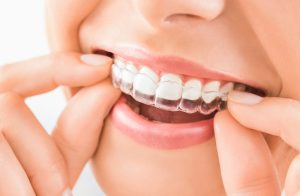 laser teeth whitening Singapore