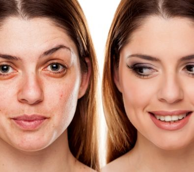 Things You Should Know About Dermal Fillers